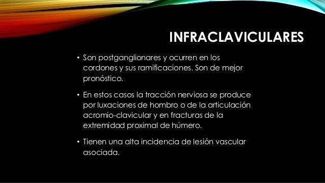 INFRACLAVICULARES • Son postganglionares y ocurren en los cordones y sus ramificaciones. Son de mejor pronóstico. • En est...