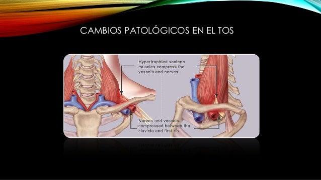 CAMBIOS PATOLÓGICOS EN EL TOS