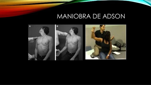 MANIOBRA DE ADSON