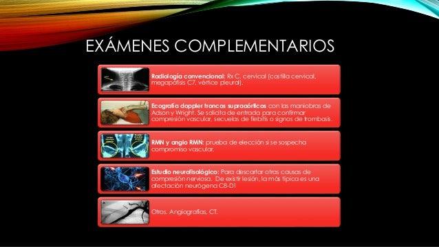 EXÁMENES COMPLEMENTARIOS Radiología convencional: Rx C. cervical (costilla cervical, megapófisis C7, vértice pleural). Eco...