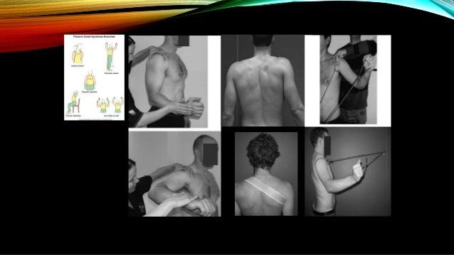 TRATAMIENTO QUIRÚRGICO • Pacientes que se mantienen sintomáticos después de varios meses de tratamiento conservador requie...