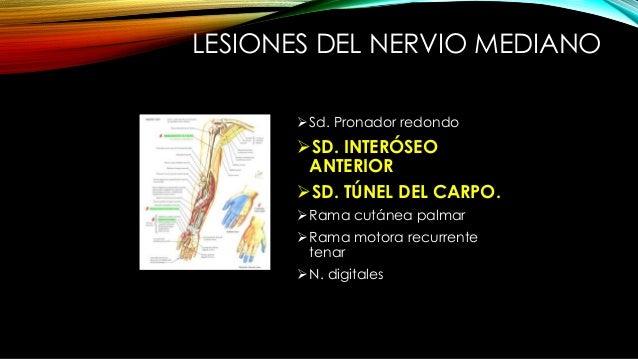 SÍNDROME DEL INTERÓSEO ANTERIOR (KILOH-NEVIN) Lesión a nivel proximal del antebrazo. CAUSAS: trauma, tendinitis de la cabe...
