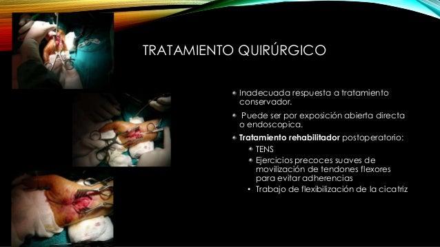 LESIONES NERVIO CUBITAL • Principalmente se producen en: Nervios digitales Rama motora palmar profunda Canal Guyon (muñeca...