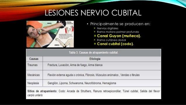 SÍNDROME DEL TÚNEL ULNAR O DEL CANAL DE GUYON • Anatomía: Hueso pisiforme y ligamento pisiforme ganchoso (ulnar), gancho d...