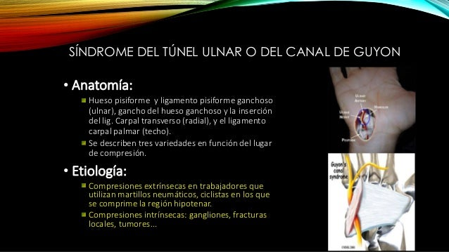SÍNDROME DEL TÚNEL ULNAR O DEL CANAL DE GUYON •Clínica: Atrofia de la eminencia hipotenar y de los espacios ínter óseos, e...