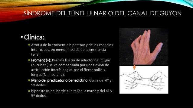 SÍNDROME DEL TÚNEL ULNAR O DEL CANAL DE GUYON • Diagnostico: Clínico y estudios electro diagnósticos • Tratamiento: Inmovi...