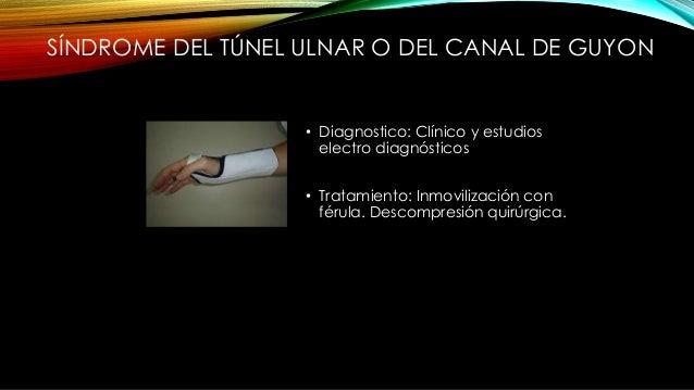 ATRAPAMIENTO DEL N. CUBITAL A NIVEL DEL CANAL EPITRÓCLEOLECRANIANO • Anatomía: Se encuentra a lo largo de la cara medial d...