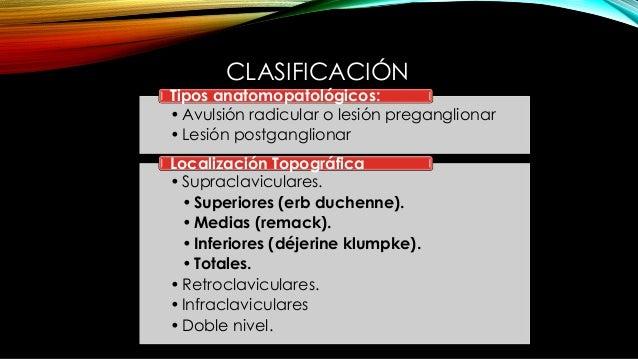 CLASIFICACIÓN •Avulsión radicular o lesión preganglionar •Lesión postganglionar Tipos anatomopatológicos: •Supraclavicular...