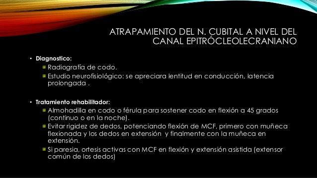 ATRAPAMIENTO DEL N. CUBITAL A NIVEL DEL CANAL EPITRÓCLEOLECRANIANO • Tratamiento: Quirúrgico: Descompresión nervio ulnar: ...
