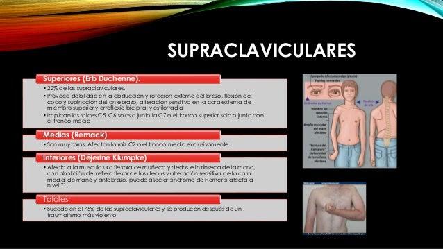SUPRACLAVICULARES •22% de las supraclaviculares. •Provoca debilidad en la abducción y rotación externa del brazo, flexión ...