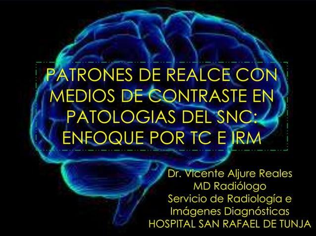 PATRONES DE REALCE CON MEDIOS DE CONTRASTE EN PATOLOGIAS DEL SNC: ENFOQUE POR TC E IRM Dr. Vicente Aljure Reales MD Radiól...