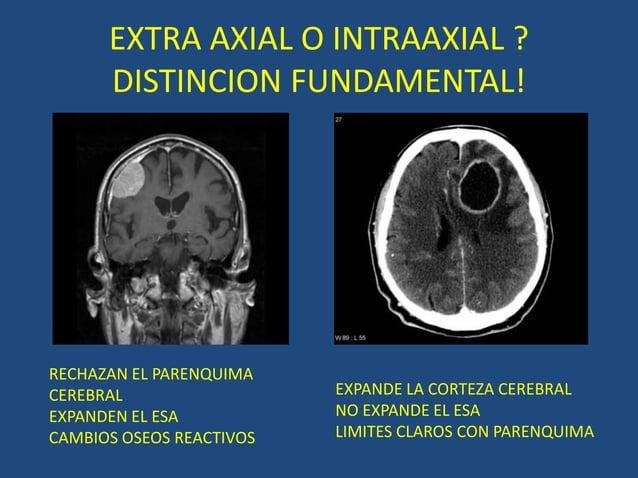 EXTRA AXIAL O INTRAAXIAL ? DISTINCION FUNDAMENTAL! EXPANDE LA CORTEZA CEREBRAL NO EXPANDE EL ESA LIMITES CLAROS CON PARENQ...