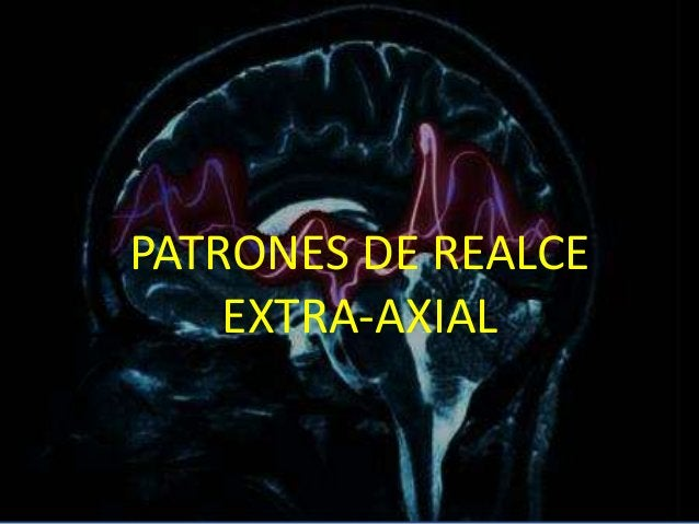 PATRONES DE REALCE EXTRA-AXIAL