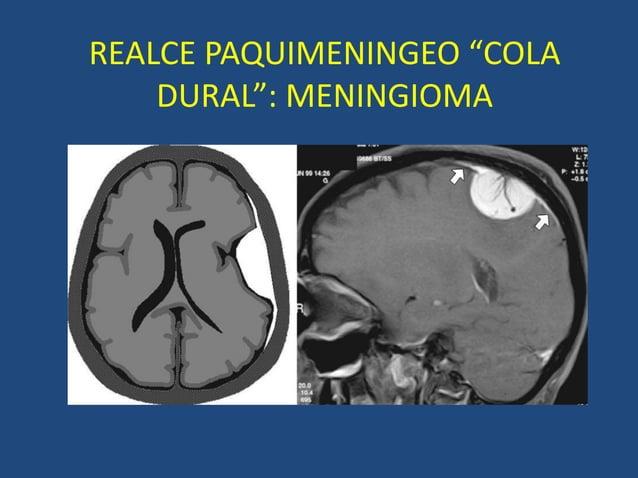 """REALCE PAQUIMENINGEO """"COLA DURAL"""": MENINGIOMA"""