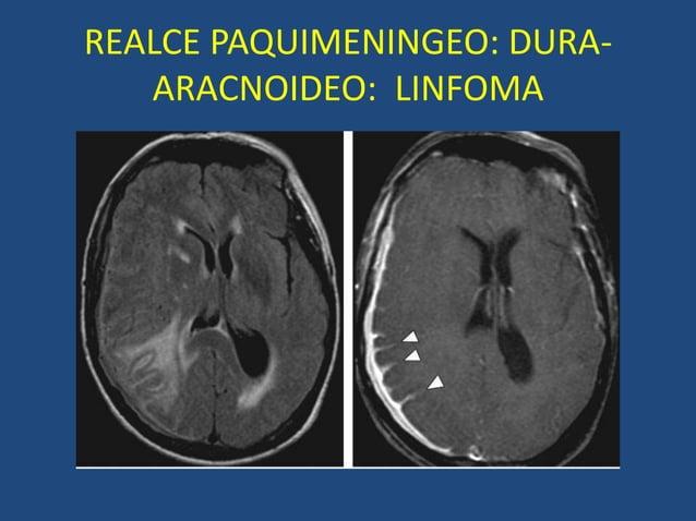 REALCE PAQUIMENINGEO: DURA- ARACNOIDEO: LINFOMA