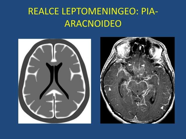 REALCE LEPTOMENINGEO: PIA- ARACNOIDEO