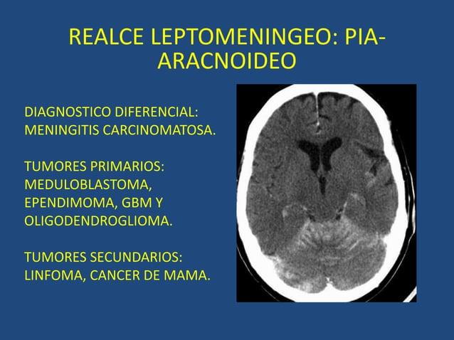 REALCE LEPTOMENINGEO: PIA- ARACNOIDEO DIAGNOSTICO DIFERENCIAL: MENINGITIS CARCINOMATOSA. TUMORES PRIMARIOS: MEDULOBLASTOMA...