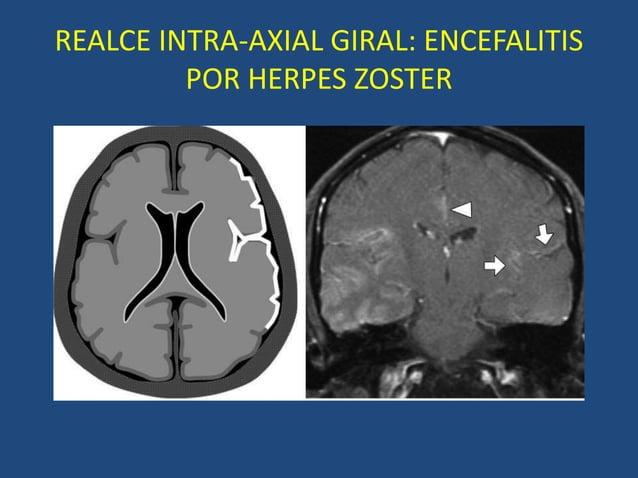REALCE INTRA-AXIAL GIRAL: ENCEFALITIS POR HERPES ZOSTER