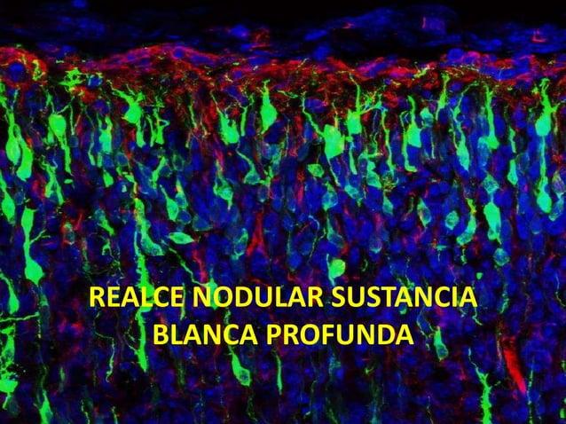 REALCE NODULAR SUSTANCIA BLANCA PROFUNDA