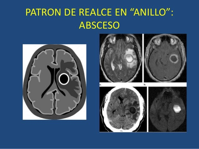 """PATRON DE REALCE EN """"ANILLO"""": ABSCESO"""