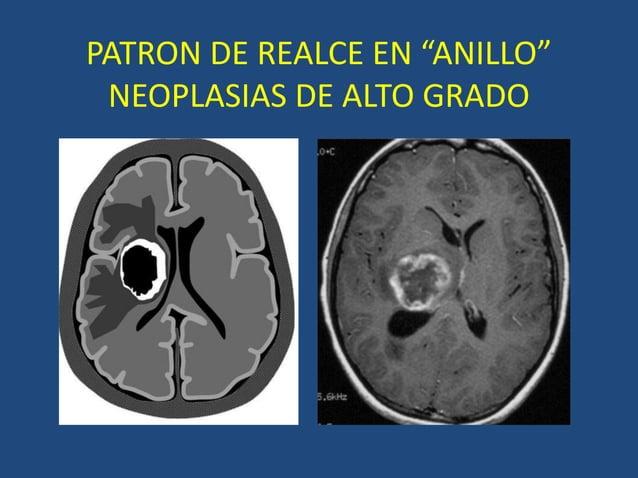 """PATRON DE REALCE EN """"ANILLO"""" NEOPLASIAS DE ALTO GRADO"""