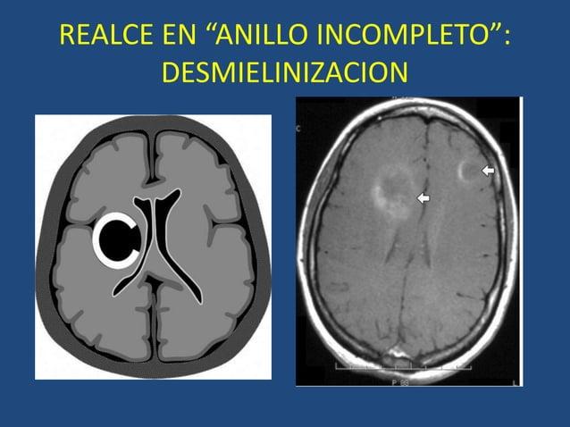 "REALCE EN ""ANILLO INCOMPLETO"": DESMIELINIZACION"