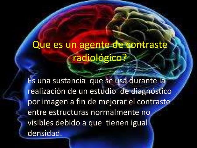 Que es un agente de contraste radiológico? Es una sustancia que se usa durante la realización de un estudio de diagnóstico...