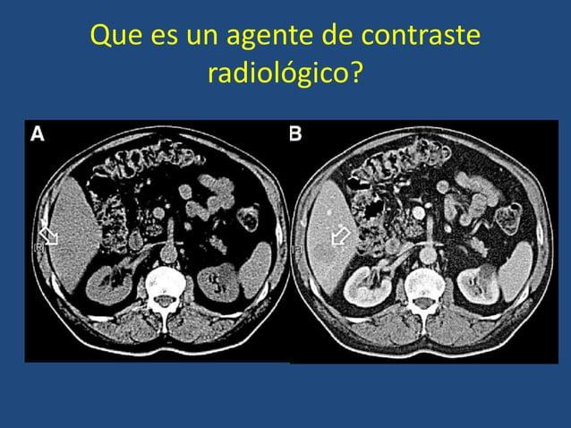 Que es un agente de contraste radiológico?