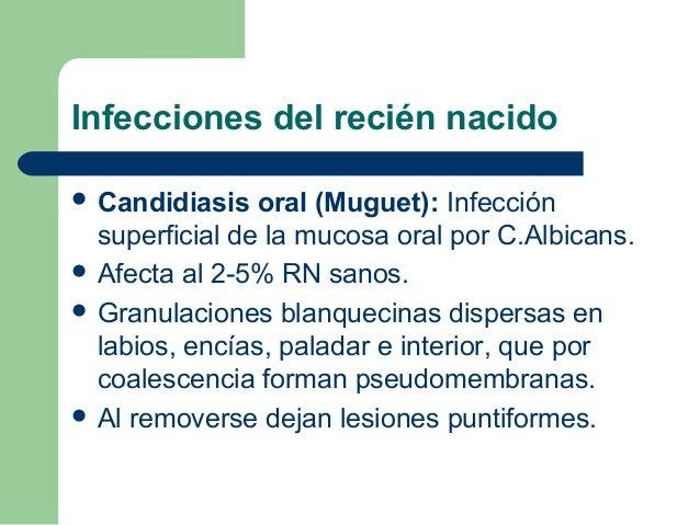 Infecciones del recién nacido Candidiasis   oral (Muguet): Infección  superficial de la mucosa oral por C.Albicans. Afec...