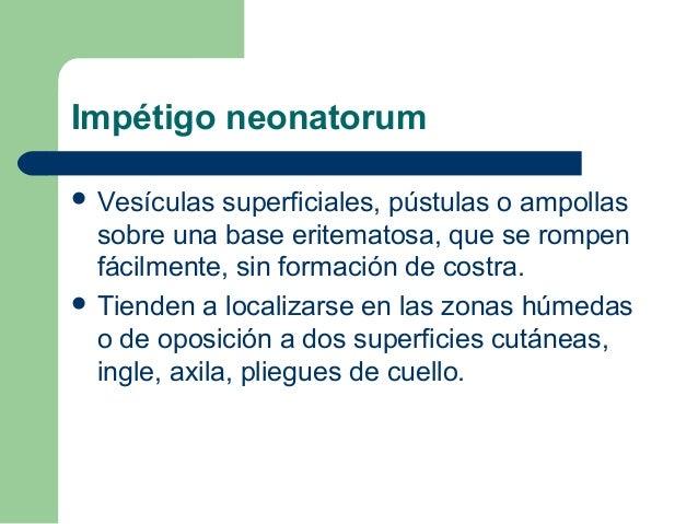 Impétigo neonatorum Vesículas   superficiales, pústulas o ampollas  sobre una base eritematosa, que se rompen  fácilmente...