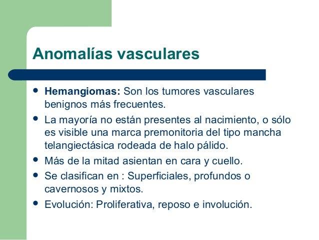 Hemangioma en fase proliferativa