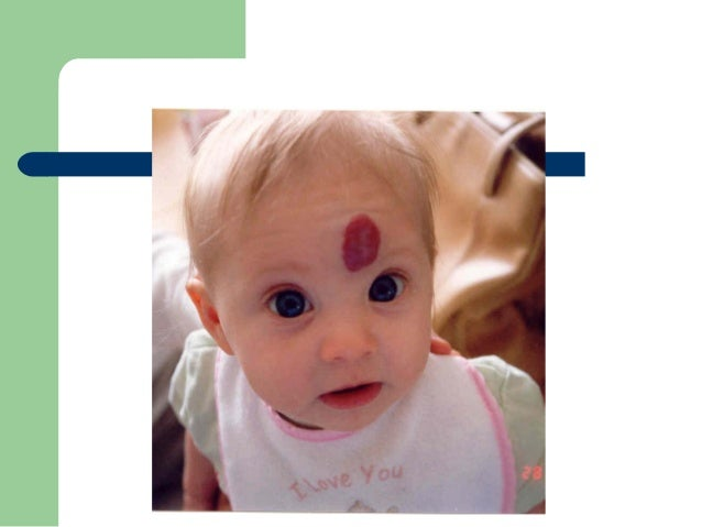 Tumores vasculares Hemangioendotelioma    Kaposiforme: Tumor raro, asociado al síndrome de  Kasabach-Merrit y con linfan...