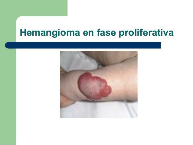 Hemangioma Kaposiforme