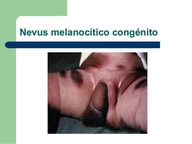 Lesiones dermatológicas en el          Neonato              Las manifestaciones cutáneas son muy              comunes en e...