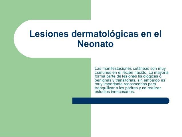Lesiones dermatológicas en el neonato, 2ª parte