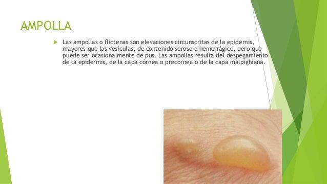 Si es posible curar el hongo de las uñas por el medio público