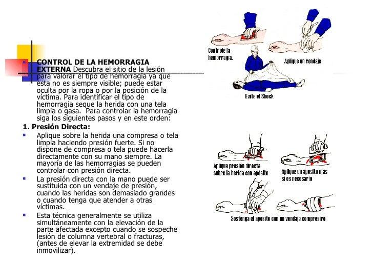 <ul><li>CONTROL DE LA HEMORRAGIA EXTERNA  Descubra el sitio de la lesión para valorar el tipo de hemorragia ya que esta no...