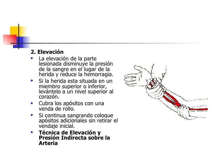 <ul><li>2. Elevación   </li></ul><ul><li>La elevación de la parte lesionada disminuye la presión de la sangre en el lugar ...