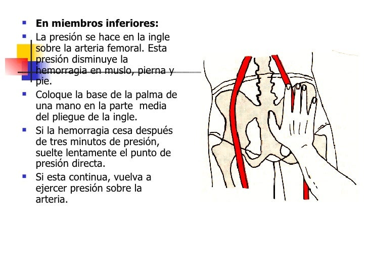 <ul><li>En miembros inferiores:   </li></ul><ul><li>La presión se hace en la ingle sobre la arteria femoral. Esta presión ...
