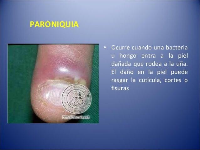 Ketokonazol del hongo de los pie