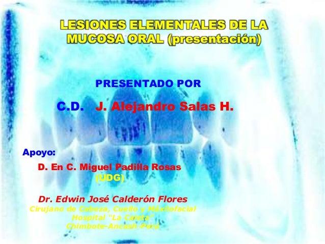LESIONES ELEMENTALES DE LA MUCOSA ORAL (presentación) C.D. J. Alejandro Salas H. Apoyo: PRESENTADO POR Dr. Edwin José Cald...
