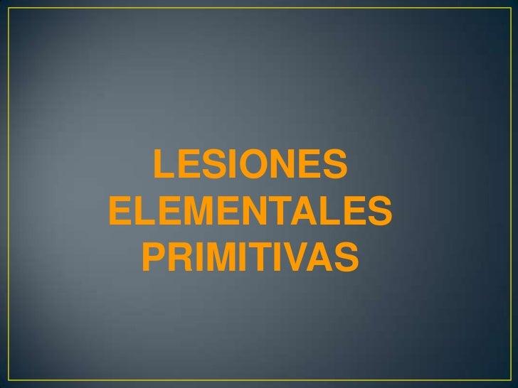 CLASIFICACIÓN• A-) Pigmentarias.1. Acrómicas. Ej. Vitíligo.2. Hipocrómicas. Ej. pitiriasis   alba, pitiriasis versicolor, ...
