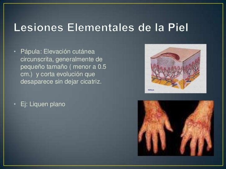 • Diferencias entre pápula y nódulo                     Pápula           Nódulo      Tamaño         Pequeño          Mayor...
