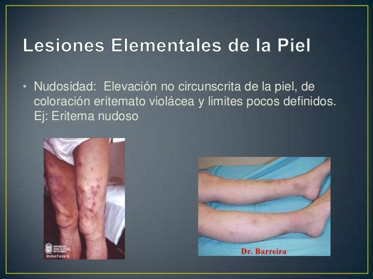 Las tres lesiones elementales primarias siguientes soncon contenido líquido.• VESÍCULA• AMPOLLA• PÚSTULA