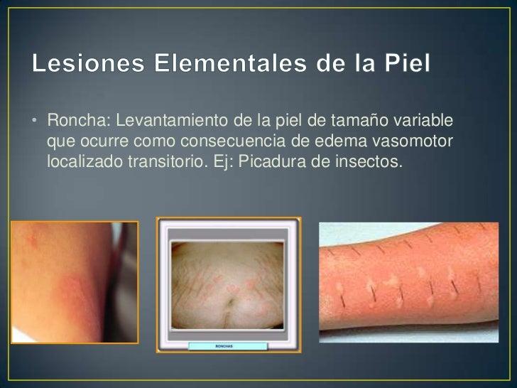 • Vesícula: Elevación de la piel  relativamente pequeña   ( menor de 0.5 cm) de contenido  liquido seroso y sanguinolento....