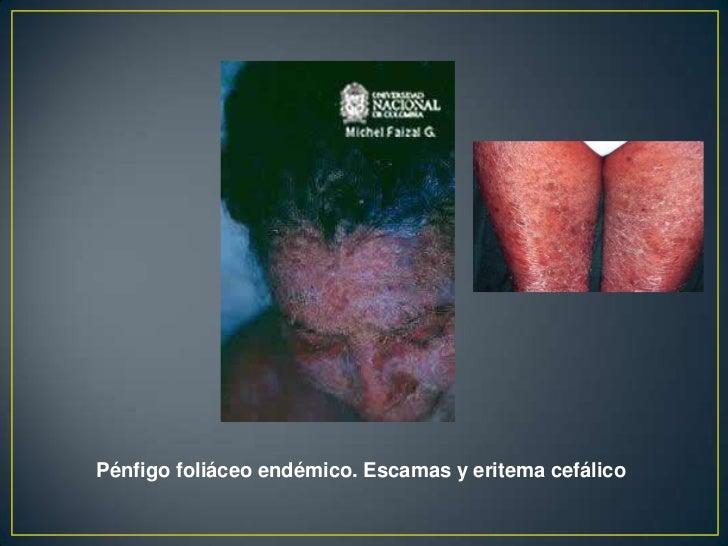 • Liquenificación: Placas  circunscritas provocados por el  rascado crónico caracterizado  por engrosamiento de la piel co...