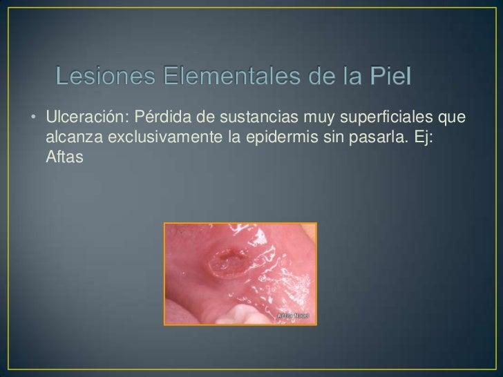 • Atrofia: Pérdida de la elasticidad y distensibilidad de la  piel. Se debe a la reducción en el número y tamaño de las  c...
