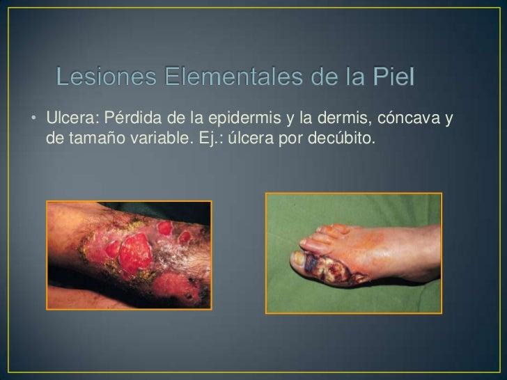 • Cicatriz: Es la restitución  de una pérdida de  sustancias de la piel por  tejido fibroso. Ej: Herida  curada.