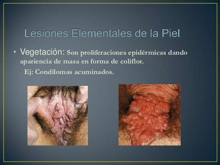 • Placa: Es cuando existe más de una lesión elemental entremezclada. Ej: Psoriasis (escama + eritema)