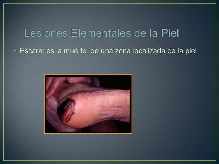 Excoriación:Desaparición traumáticade la epidermis o dermissuperficial. No tiende adejar cicatriz